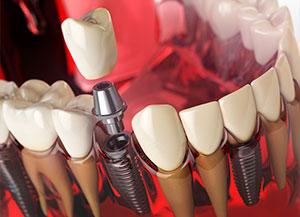Одномоментная имплантация зубов в Москве