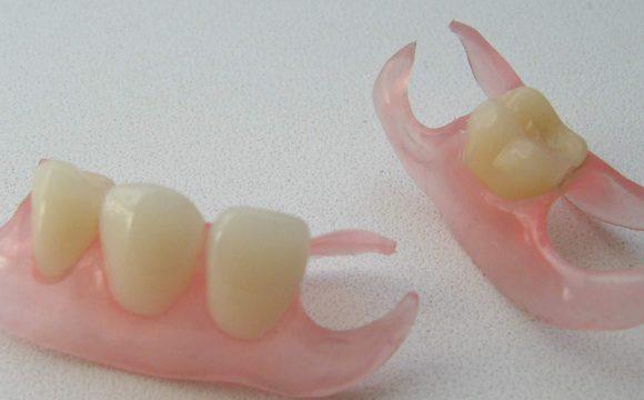 Частичное протезирование зубов в Москве