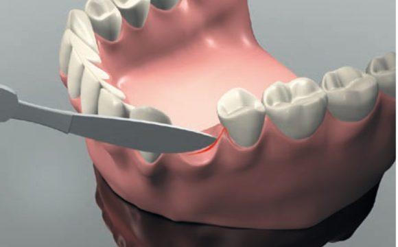 Хирургическая имплантация зубов